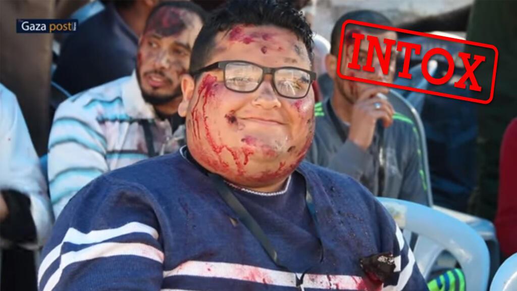 Capture d'écran de la vidéo qui a été manipulée, montrant un enfant souriant avec son maquillage simulant une blessure.