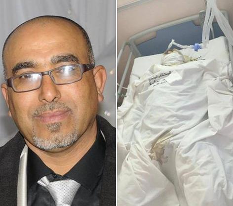 Imed Ghanmi, 43 ans, marié et père de 3 enfants. Avant et après son immolation (source: page facebook: scandales du ministère de l'intérieur).