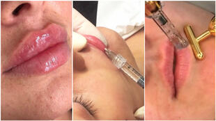 Some beauticians have been posting advertisements for lip injections on Instagram. This practice is actually illegal.