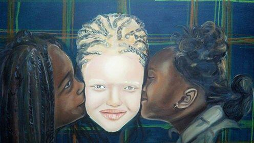 Congolese artist Josué Valentia Mbanga Iloko has created a series of paintings featuring people with albinism. For the artist, this is a way to combat the discrimination that many of them face. (All of the photos were provided by Iloko).