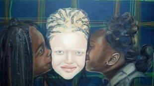 Josué Valentia Mbanga Iloko réalise des peintures d'albinos pour lutter contre les discriminations dont ils sont victimes en RDC. Toutes les photos ont été envoyées par lui-même.