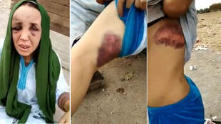 Screenshots of a video of a woman in Morocco who said she was beaten by her husband. (Saïd Baji/Facebook)