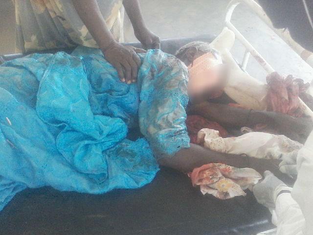 Vendredi dernier, cette Nigériane réfugiée à Fotokol (Cameroun) s'est fait tirer dessus par des combattants de Boko Haram.