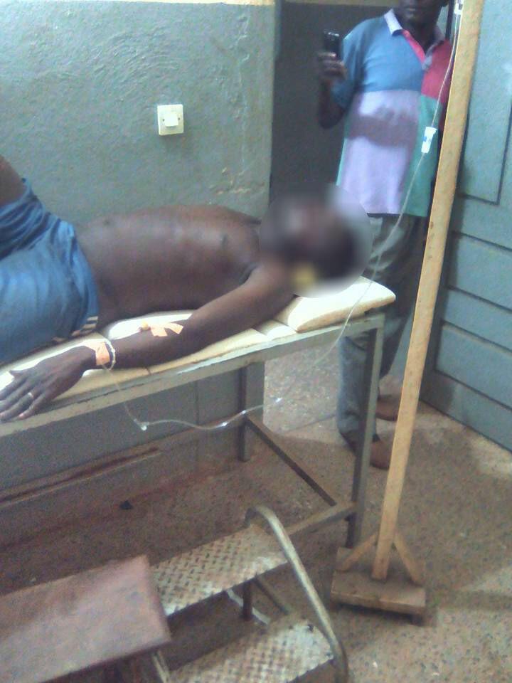 Un blessé, à la suite des violences qui se sont produites à Assuéfry, dans l'est de la Côte d'Ivoire, lundi 7 mars. Toutes les photos ont été publiées sur Facebook par des habitants.