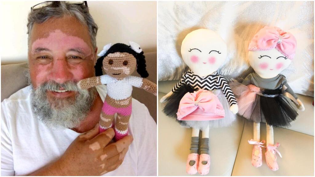 João Stanganelli Junior fabrique des poupées ressemblant aux personnes atteintes de vitiligo. Vanessa Barrera confectionne, elle, des petites poupées chauves. Facebook / My Pretty Little Gift / Amigurumi da Lena.