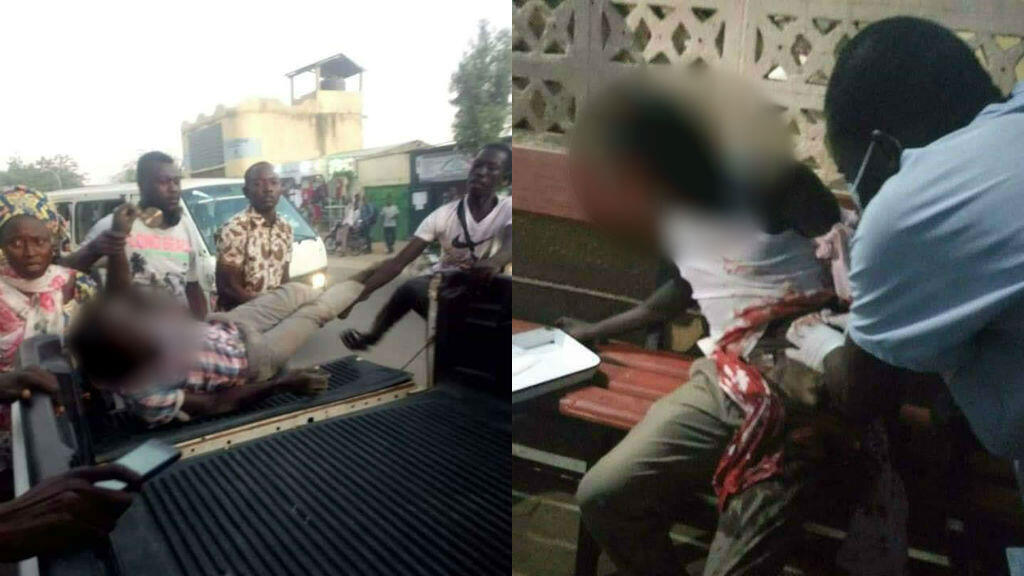 Bonheur Manayal Mateyan est mort des suites de ses blessures après avoir été touché par des tirs à balles réelles de l'escorte du président de l'Assemblée nationale du Tchad, le 4novembre. Photos publiées sur Facebook.