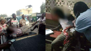 Bonheur Manayal Mateyan died from his wounds after being shot by the security services escorting the president of Chad's National Assembly on November 4. (These photos were published on Facebook).