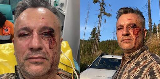 Photos of Tiberiu Bosutar after the attack