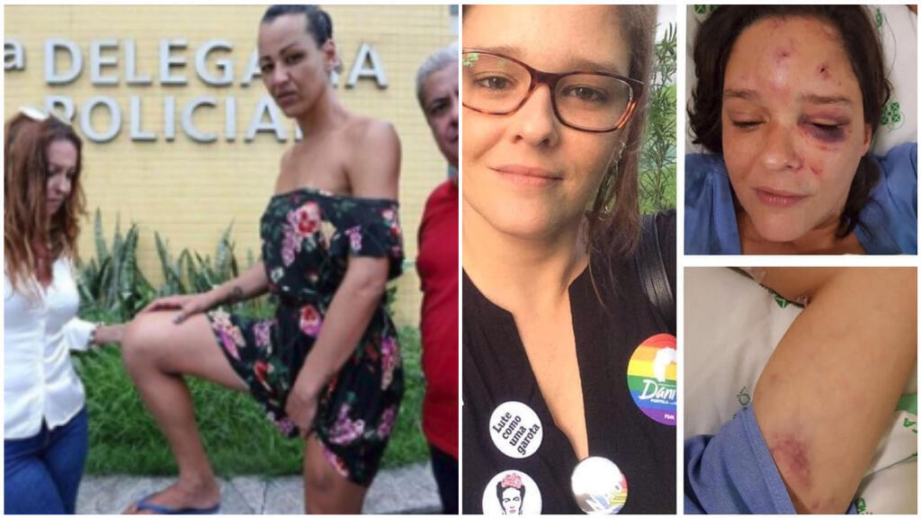 Des personnes LGBT, mais aussi d'autres affichant leur antipathie pour Jair Bolsonaro, ont été agressées, et l'une même assassinée, depuis le premier tour de l'élection présidentielle.
