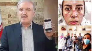 در سمت چپ، وزیر بهداشت ایران بهطور زنده در اینستاگرام عکسی از پرستاری را نشان میدهد و میگوید یک پرستار ایرانی است اما در تصویر سمت راست، آماندا پرستار برزیلی عکس خودش را در اینستاگرام منتشر کرده است.