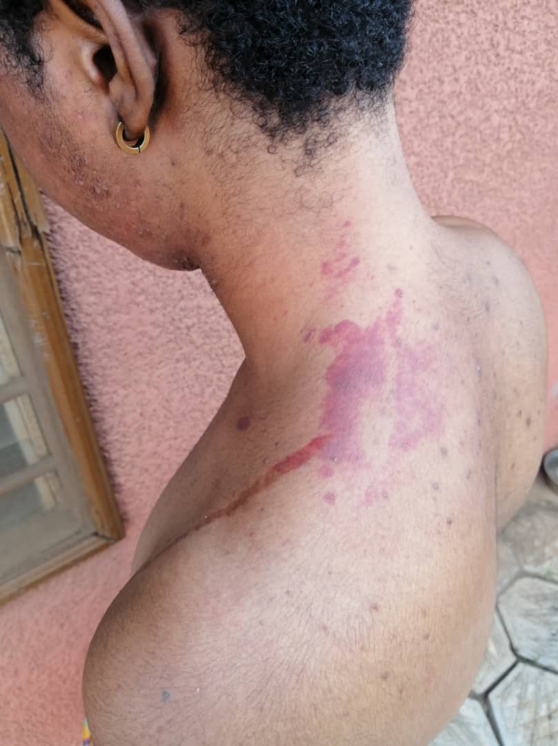 Bruises on the back of a victim's neck after the attack