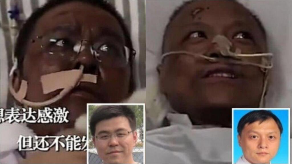 پس از ابتلای دو پزشک چینی به کووید ۱۹ رنگ پوست آنها نیز تغییر کرد. عکس از گزارش تلویزیون پکن.