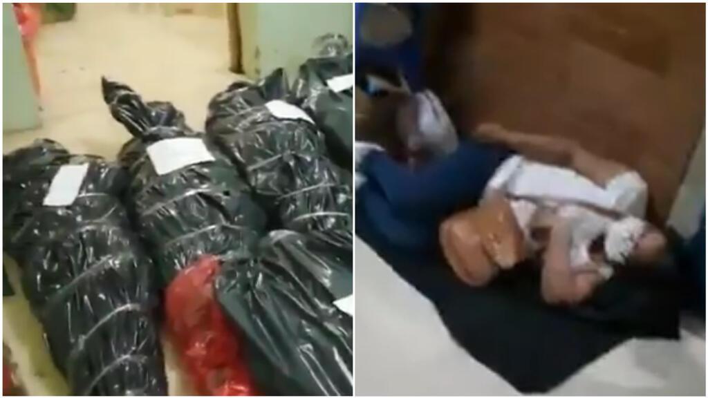 صور شاشة من مقطعين مصورين أسفله، تم تصويرهما في مستشفى لوريتو الجهوي في مدينة إكيتوس في بيرو. وفي نهاية نيسان/ أبريل، بدأ هذا المستشفى باستقبال المرضى المصابين بفيروس كورونا.